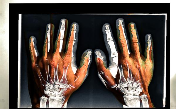 Xray Hands